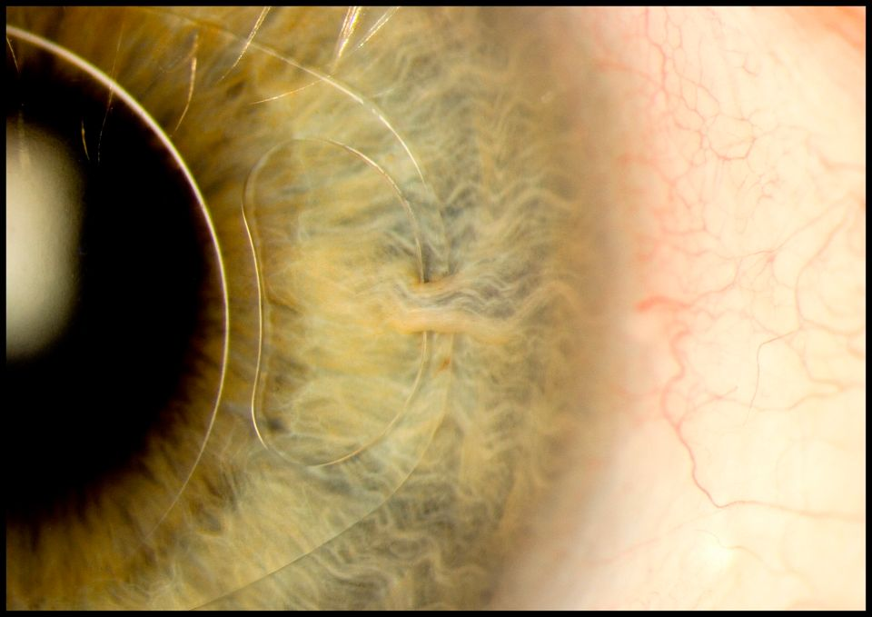 This image shows how an iris clip also known as an artificial intraocular lens fitted onto the eye. Its...