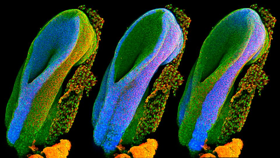 Developing spinal cord: This series of three images shows the open end of a mouse's neural tube. The...