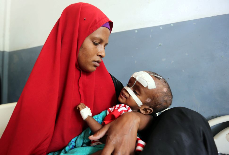 A Somali woman holds her malnourished child fitted with a nasogastric tube inside a ward at the Banadir hospital on Marc