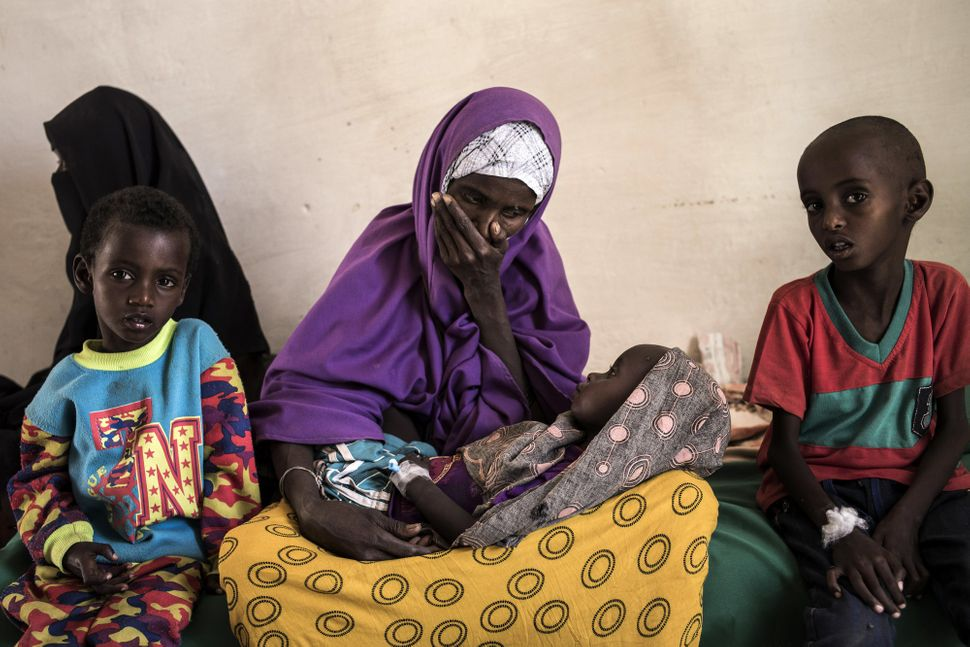 Sahro Mohamed Mumin looks at her 2-year-old son who was diagnosed with pneumonia and severe malnutrition at a government-run