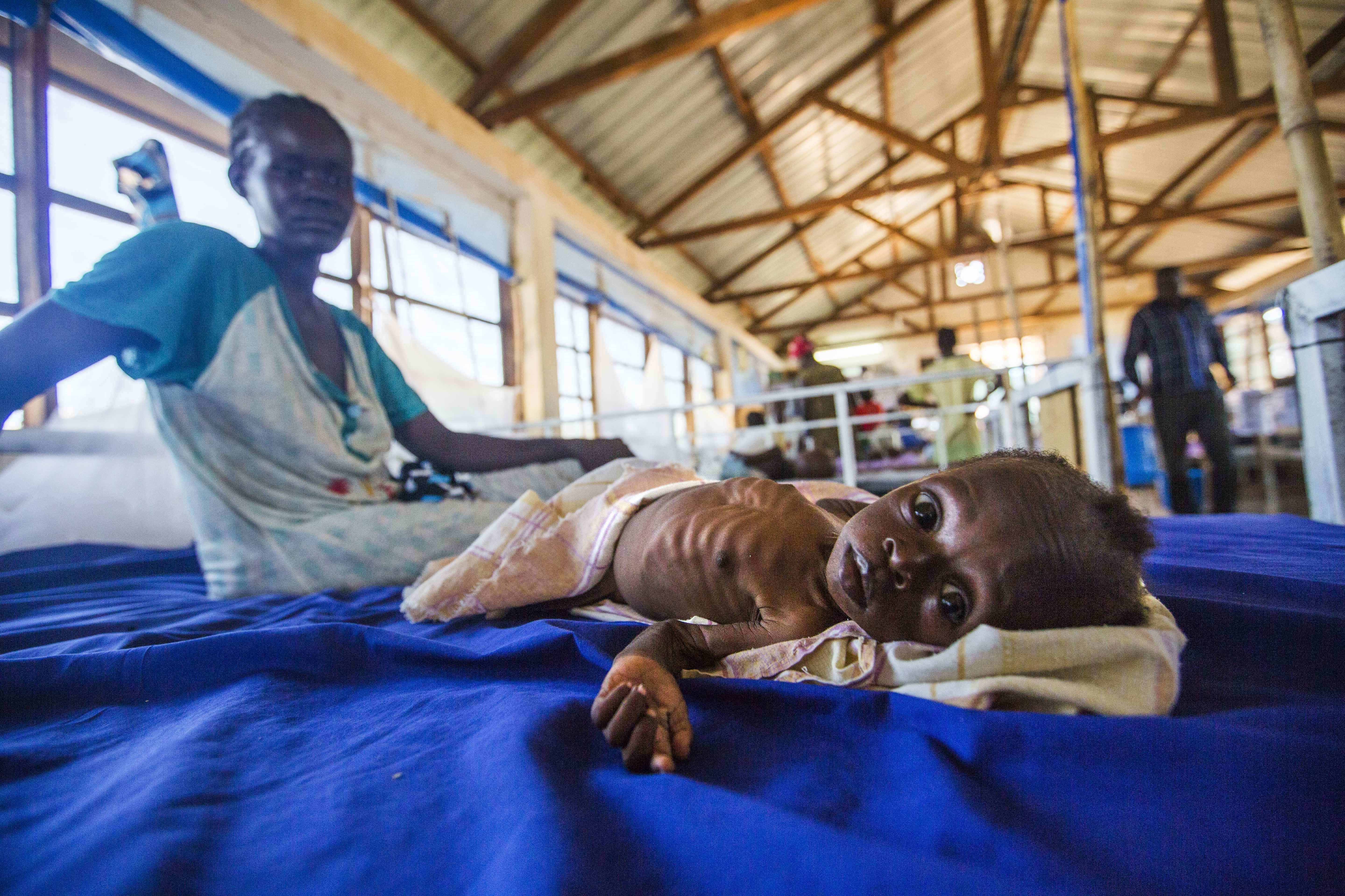 Aseverely malnourished 2-month-old girl lies in a hospital bed next to her mother. In February, South Sudan declared th