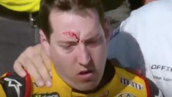 NASCAR driver Kyle Bush was left with a bloody gash on his forehead following a brawl at the Las Vegas Motor Speedway on Sunday