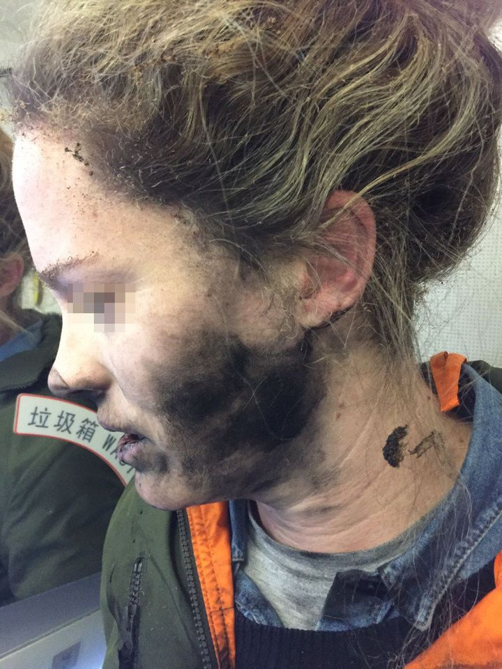 The woman says flight attendants helped her extinguish the fire on the Feb. 19 flight from Beijing, China, to Melbourne, Australia.