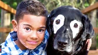 Carter Blanchard who has the skin disorder Vitiligo has made a friend of Rowdy a dog with the same condition
