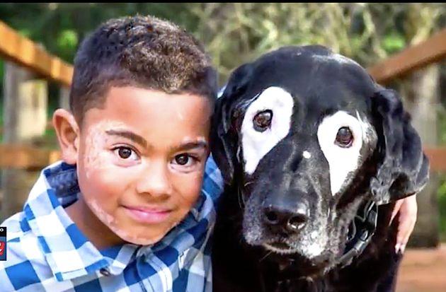 Carter Blanchard, who has the skin disorder vitiligo, has made a friend of Rowdy, a black Labrador retriever...