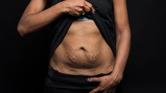 """NEW YORK, NY - MARCH 21:  Ligia (Li) Guyamier poses for a portrait for a """"C-Section Scar"""" photo series  in New York on March 21, 2017. (Photo by Damon Dahlen, Huffington Post) *** Local Caption ***"""