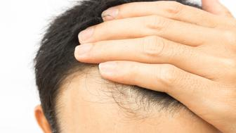 Closeup young man serious hair loss problem for hair loss concept or shampoo product, health care and medical