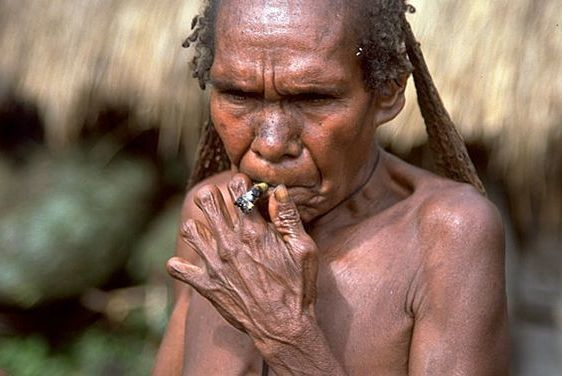 A Dani woman smokes with her amputated fingers.