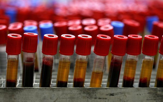 Blood test detects cancer and pinpoints location...before symptoms appear