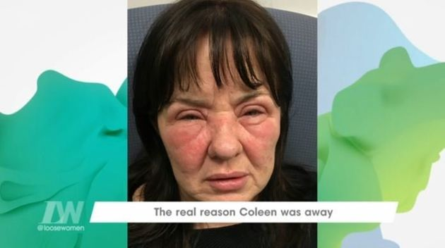 Coleen had a stress-related reaction to the