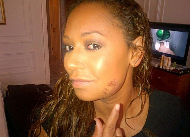 Melanie Brown tweeted this photo of her bruised face in 2012. She now claims her husband punched her...
