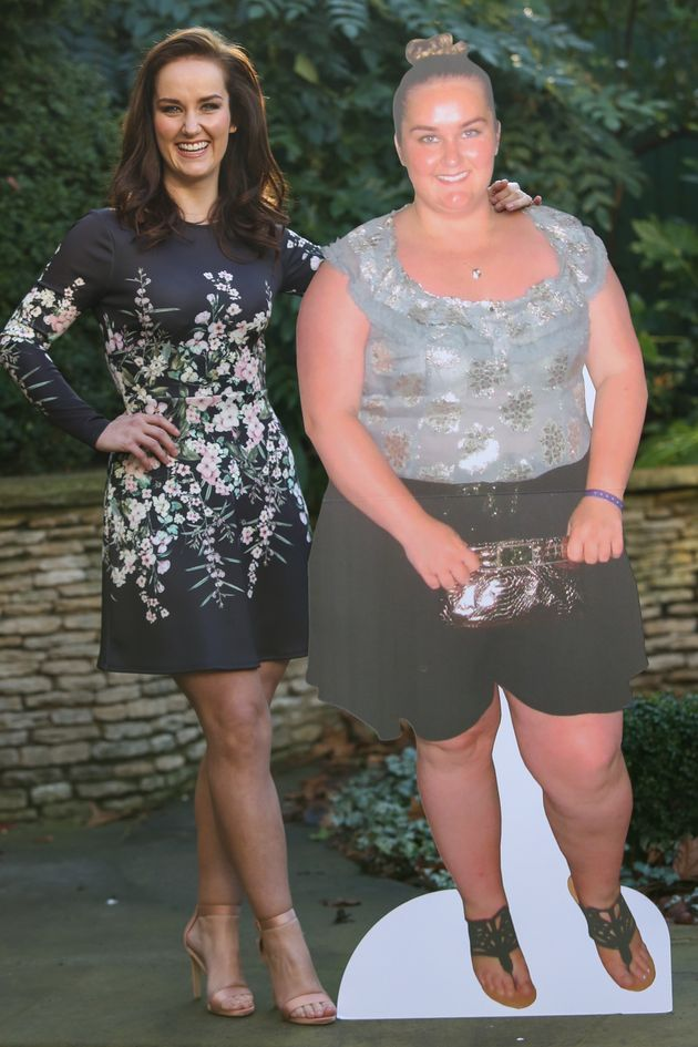 Couple Lose 11.5 Stone Between Them After Husband Forced To Ask For Belt Extension On