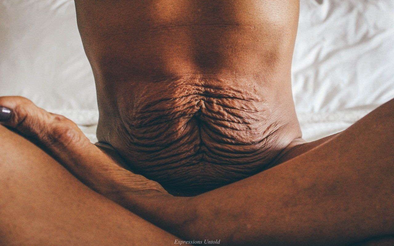 Mom Embraces Her Loose Sagging Skin In Stunning Photo