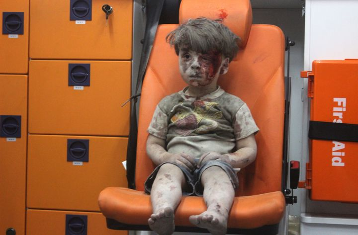 Omran Daqneesh, 5, sits alone in the back of the ambulance after being injured during an air strike targeting the Q