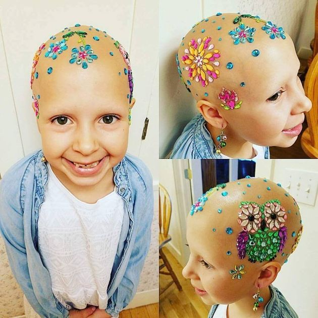 Girl with alopecia wins 'crazy hair' completion at her school