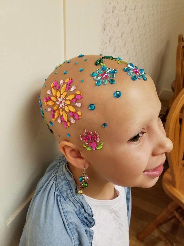 탈모증에 걸린 7세 소녀가 가장 사랑스러운 헤어스타일을