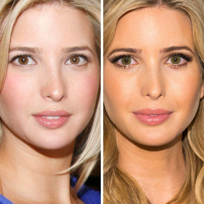 Ivanka Trump in 2007 (L) and Ivanka Trump in 2013.
