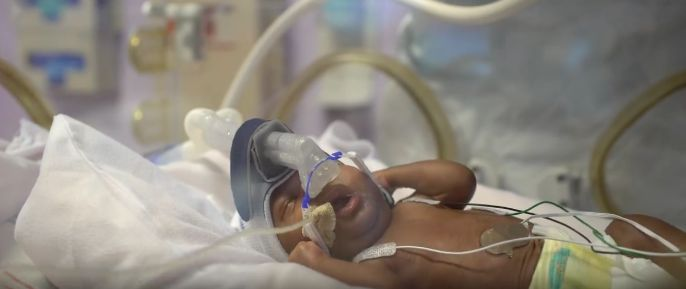 Baby Amara was born at 24 weeks in January 2017.