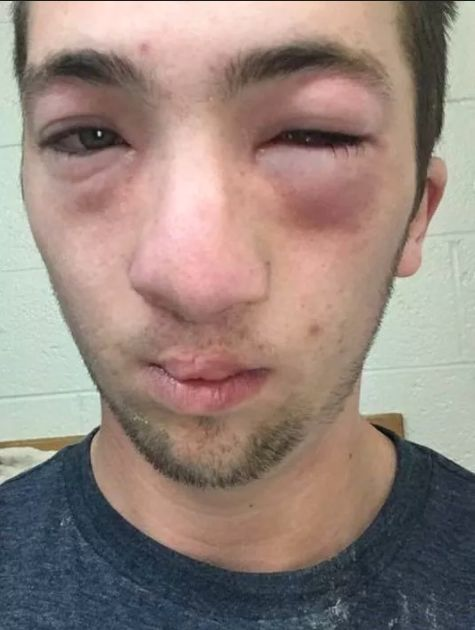 Andrew Seely claims peanut butter was smeared across his face as he