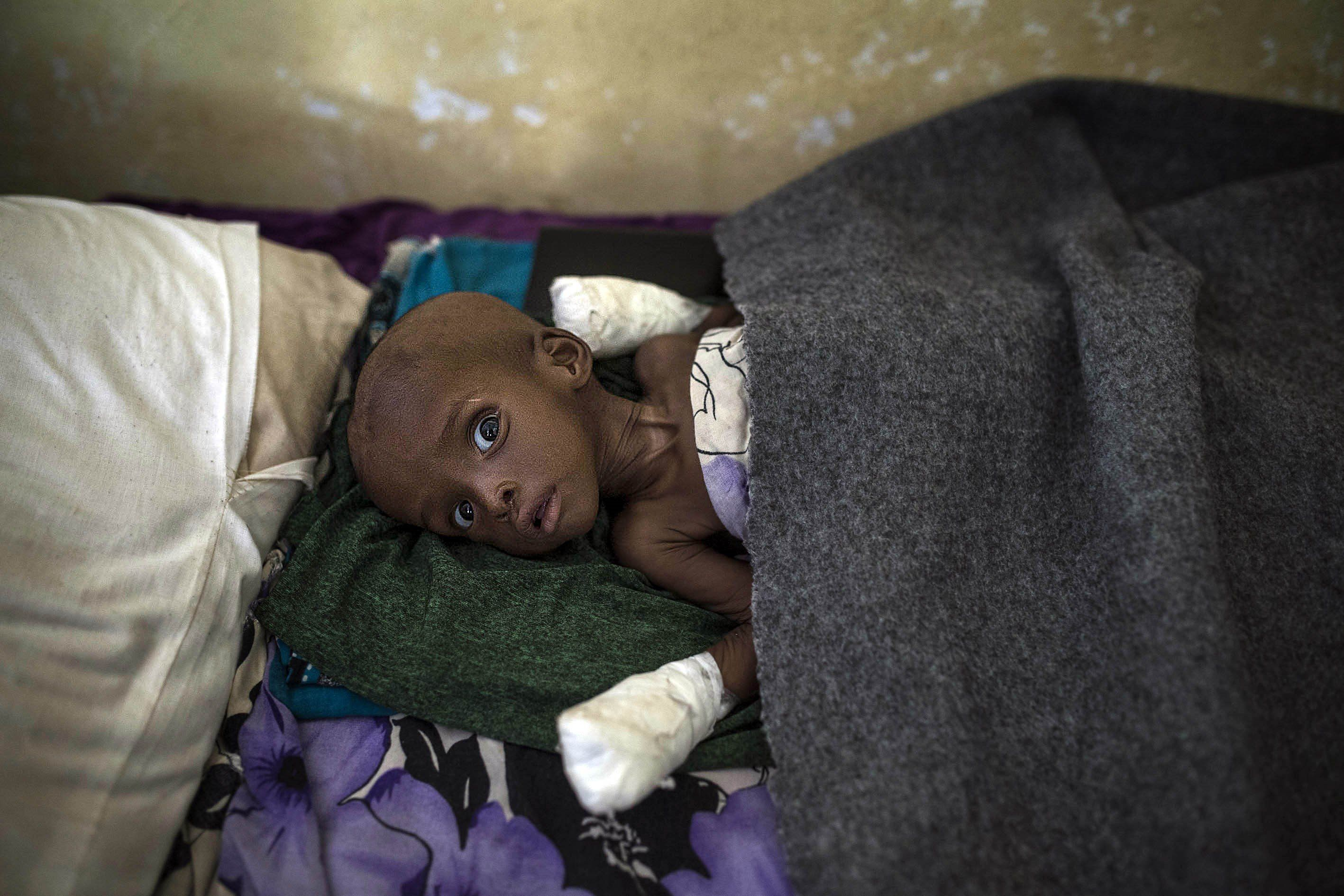 BAIDOA, SOMALIA - MARCH 28: A little kid waits for medical treatment at Bay Regional Hospital in Baidoa, capital of Bay State of Somalia on March 28, 2017. In the central and south parts of Somalia, extreme drought causes famine, hunger and make people vulnerable to diseases and epidemics such as cholera and diarrhoea. Somalians, forced to live in the Balanbaalis camp in Somalia's Bay state due to clashes and terror in the country, are fighting drought and disease at makeshift tents in harsh conditions. As there are very limited water sources in the region, people are queuing for water at wells drilled by aid organizations. (Photo by Arif Hudaverdi Yaman/Anadolu Agency/Getty Images)