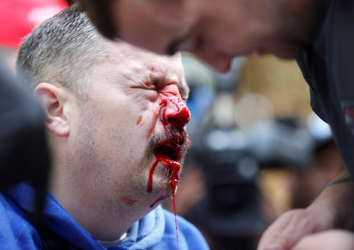 A pro-Trump supporter bleeds after being hit by a counter protester during the Patriots Day Free Speech Rally in Berkeley, Ca