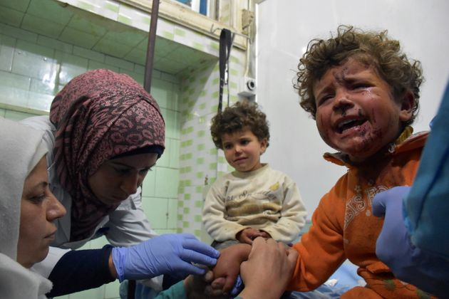 Syrian children, wounded in a suicide car bombing that targeted their buses in Rashidin, west of