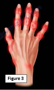 Common Hand and Finger Problems | HuffPost