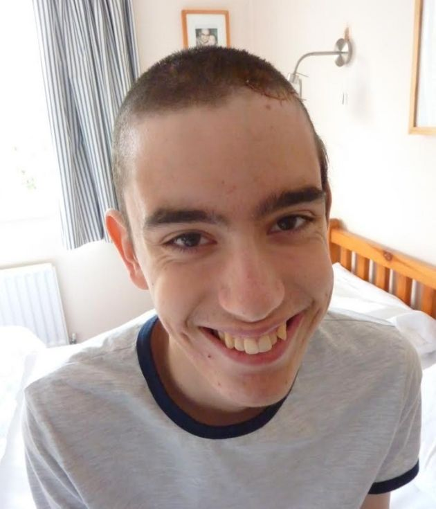 Teenager Kaleb Ells almost died when he had a massive brain bleed the day after climbing a