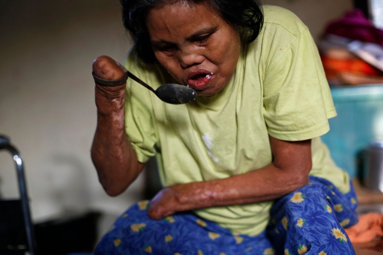 Contrary to popular belief, leprosy does not make body parts fall off. It causes nerve damage, which can lead to secondary injuries and, in severe cases, amputation.