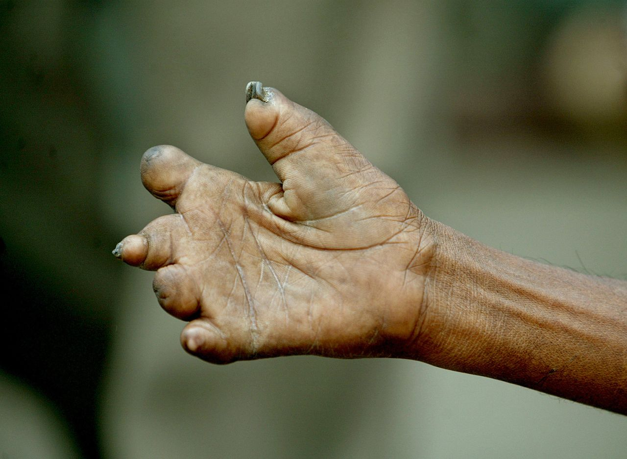 Leprosy can cause curling and shortening of the fingers.