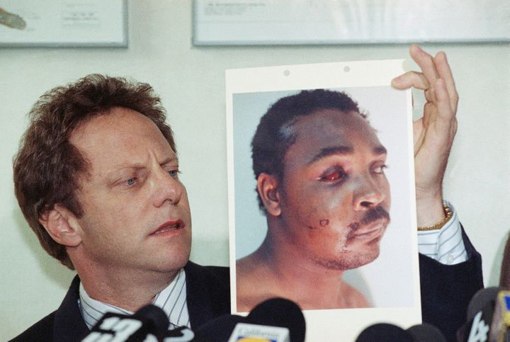 Rodney King after his encounter with the law.