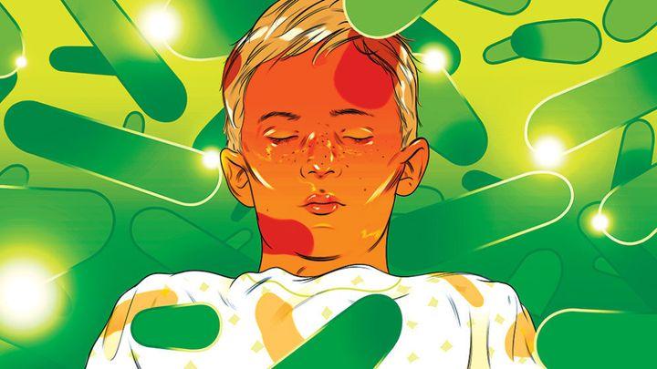 Cartoon illustration of patient with bacterial meningitis