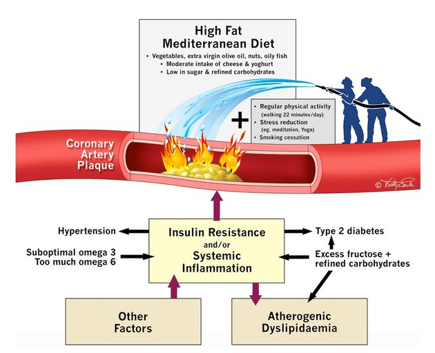 Study aims to rehabilitate saturated fat