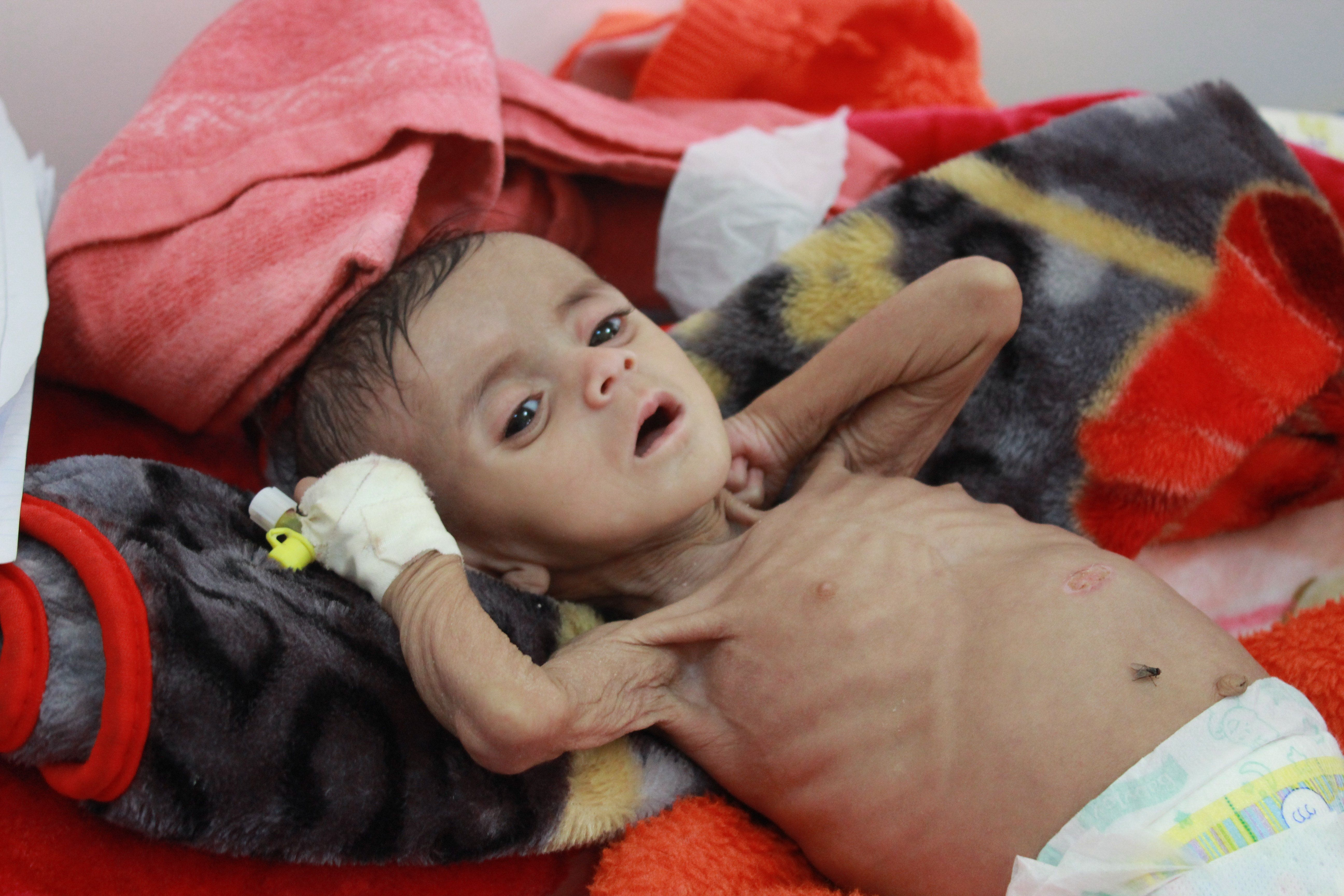 Seven-month-old Zainab Nawaf, who suffers from malnutrition, is pictured at UNICEF-supported Al-Jumhouri Hospital in Saada, Y