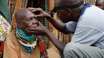 Itai Nakoru 87 from Adengei village Nakapiripirit District Karamoja region Uganda is examined to see if she is fit for eye surgery to treat her trachoma
