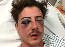 Spurs Fan Suffers Horrific Injuries After Being Mistaken For Chelsea Supporter