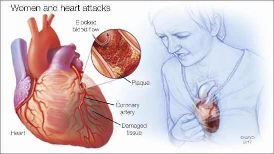 heart attack symptoms in women | huffpost, Skeleton