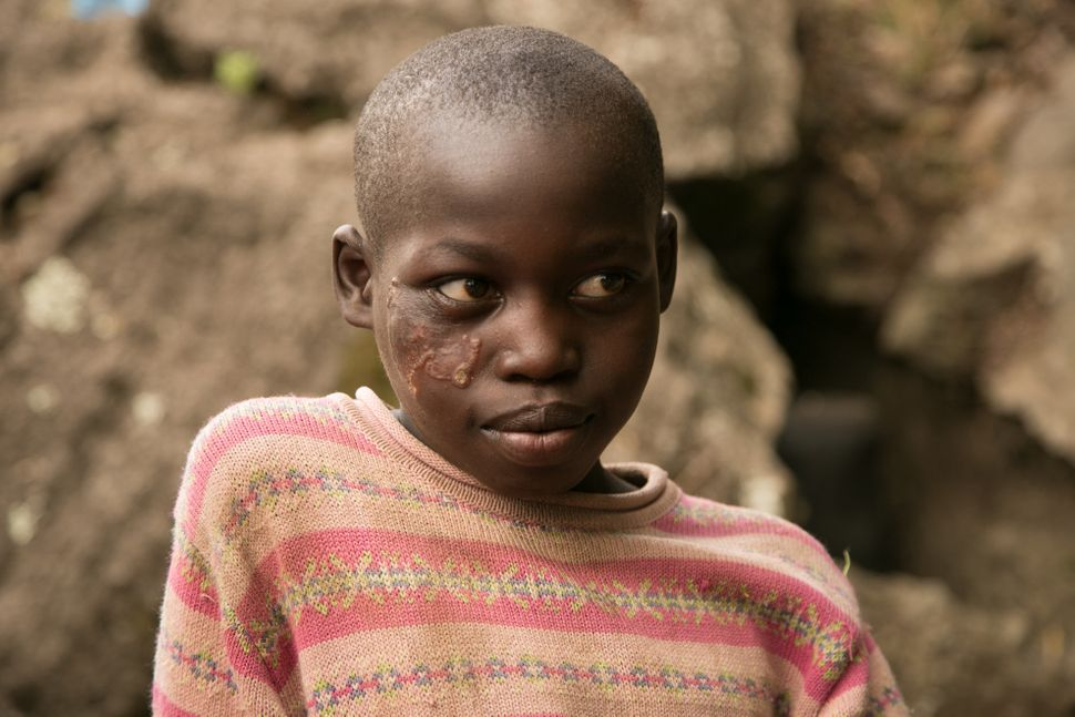 Daisy Chepsang, 10, bears the lesions caused by cutaneous leishmaniasis, which has plagued her impoverished community in a re