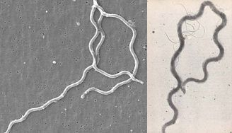 Lyme disease spirochetes (left) and syphilis spirochetes (right)