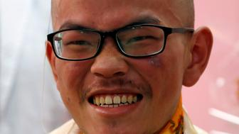 Taiwanese hiker Liang Sheng Yueh, who was lost in the Himalayas for over a month, smiles as he celebrates his 21st birthday at a hospital after being rescued, in Kathmandu, Nepal April 28, 2017. REUTERS/Navesh Chitrakar