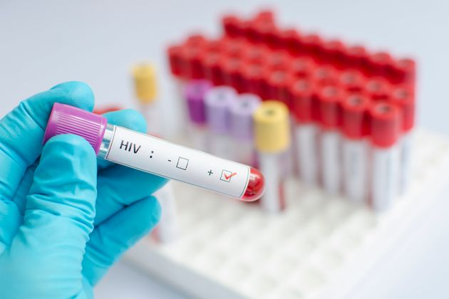 Gene Editing Could Literally Stop HIV Dead In Its