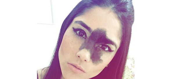 Why This Woman Asked Her Parents Not To Remove The Birthmark On Her Face