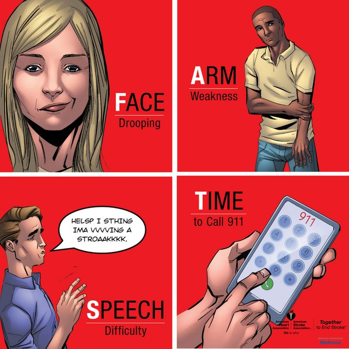 How to spot a stroke F.A.S.T.