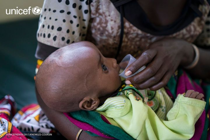 <em>A child suffering from severe acute malnutrition receiving therapeutic milk at UNICEF-supported clinic in Loiyangalani, M