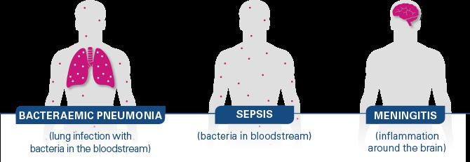 Pneumococcal disease clinical manifestations: pneumonia, sepsis, meningitis