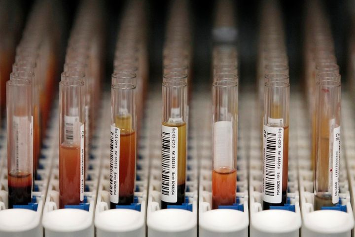<p>Blood samples waiting to be processed at a biobank.</p>