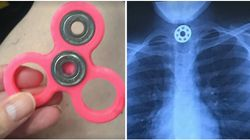 Mum Issues Fidget Spinner Warning After 10-Year-Old Gets Toy Part Stuck In Her