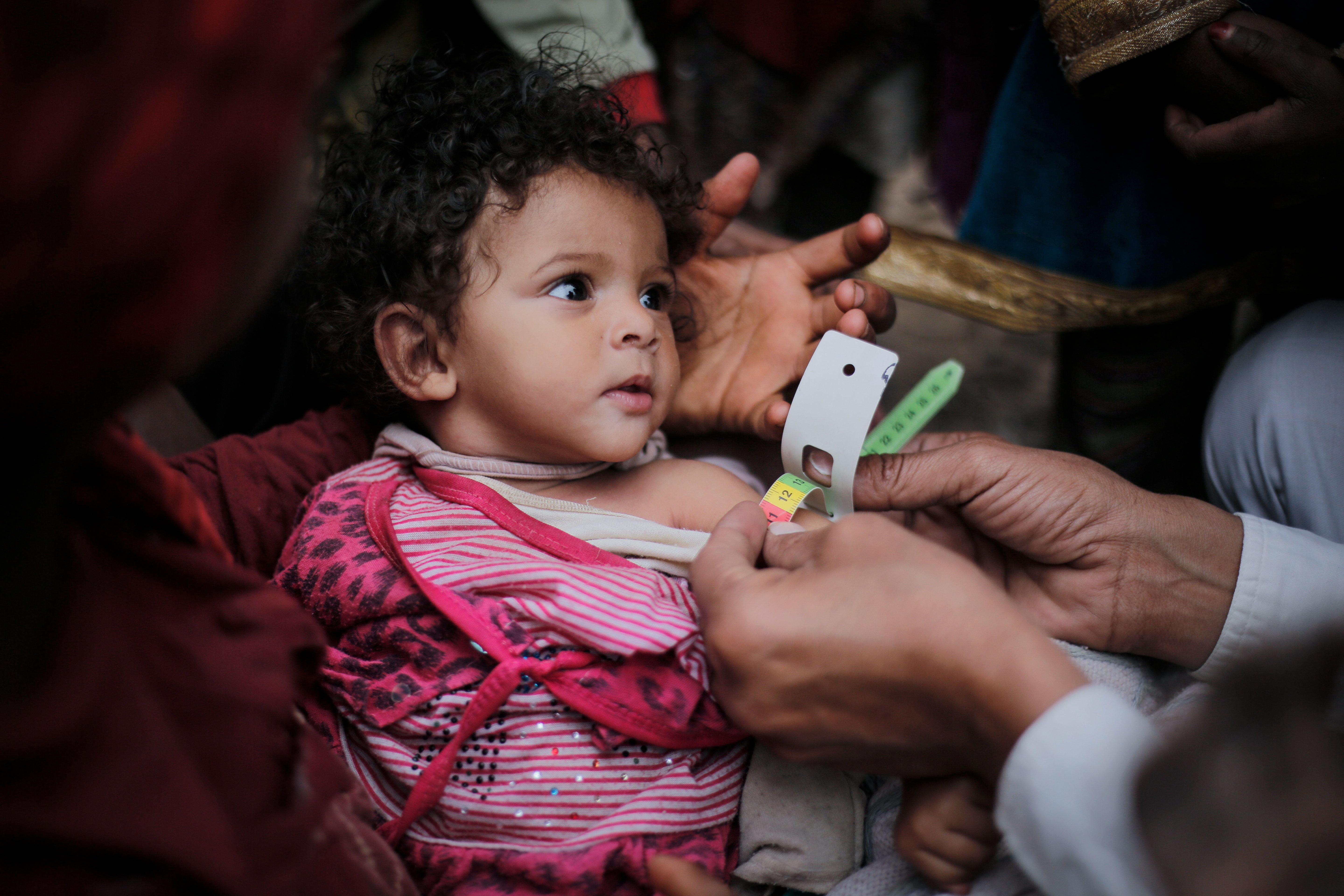 A medical practitioner uses a Mid Upper-Arm Circumference measuring tape on a child suffering from Severe...