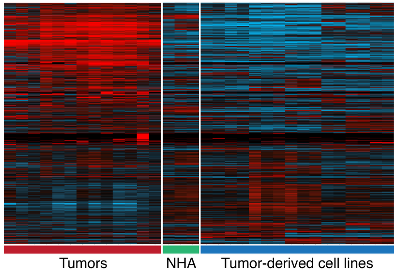 A heat map showing differences in gene expression between primary tumors and cultured cell lines. Each row is a gene and each