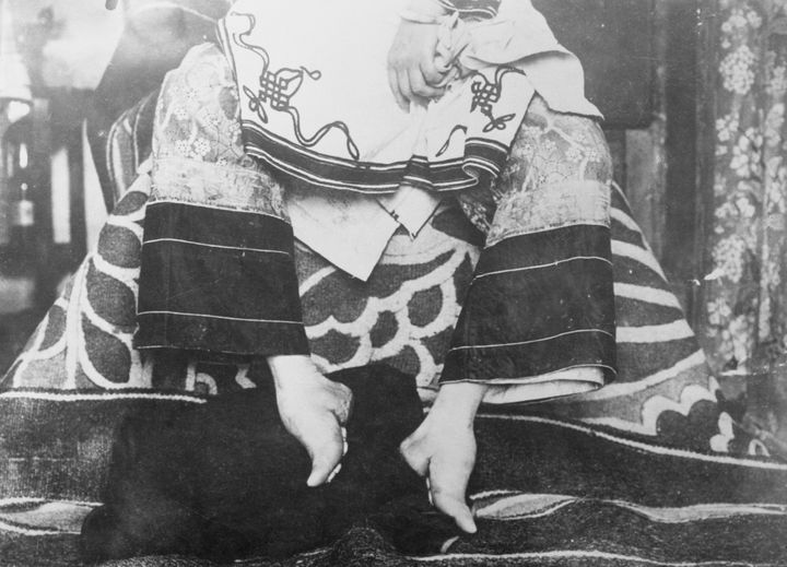 Painful Chinese Foot Binding Was More Than An Erotic Practice Study